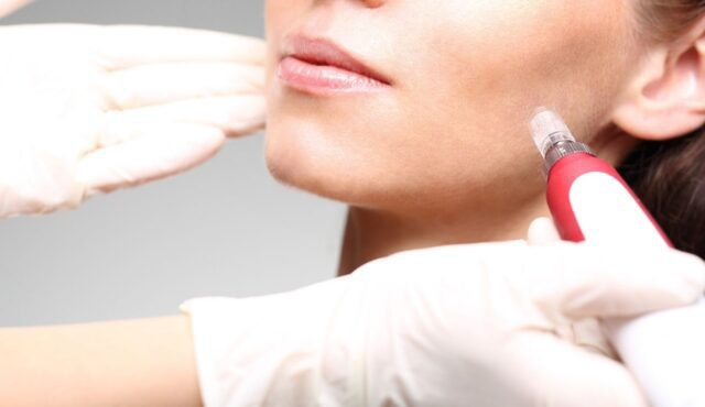 the benefits of skin needling treatments as a non-invasive and non-surgical aesthetic treatment
